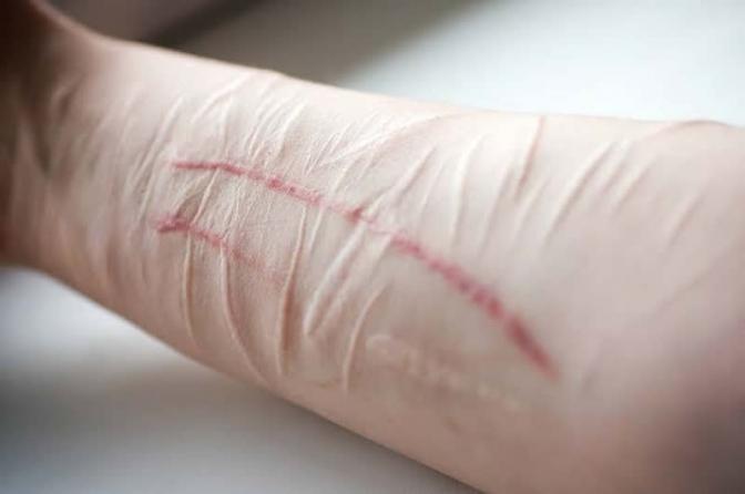 Influência ao suicídio ou à automutilação: nova redação dada pela Lei 13.968 ao artigo 122 do CP