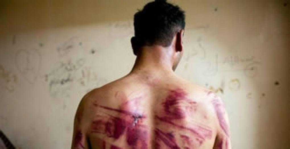 Tortura praticada por policiais e improbidade administrativa