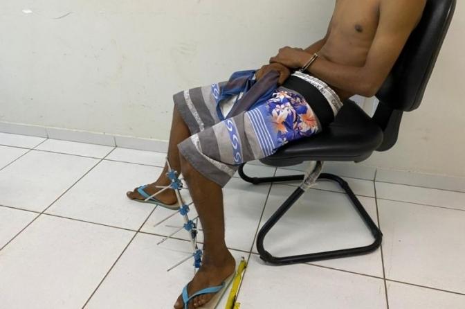 Com talas de ferro em perna fraturada, adolescente rouba vítima, mas é apreendido no MA